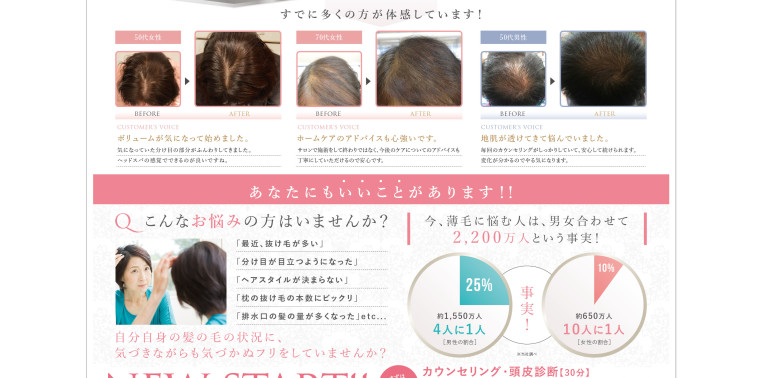 【薄毛・抜け毛対策している人必見!】先進の育毛・発毛促進プログラム施術初公開!